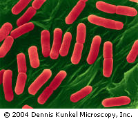 그 유명한 E.coli O157 H7